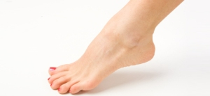 How-to-Get-Rid-of-Athlete's-Foot