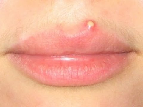 Is it true that having cold sores means you've got herpes ...