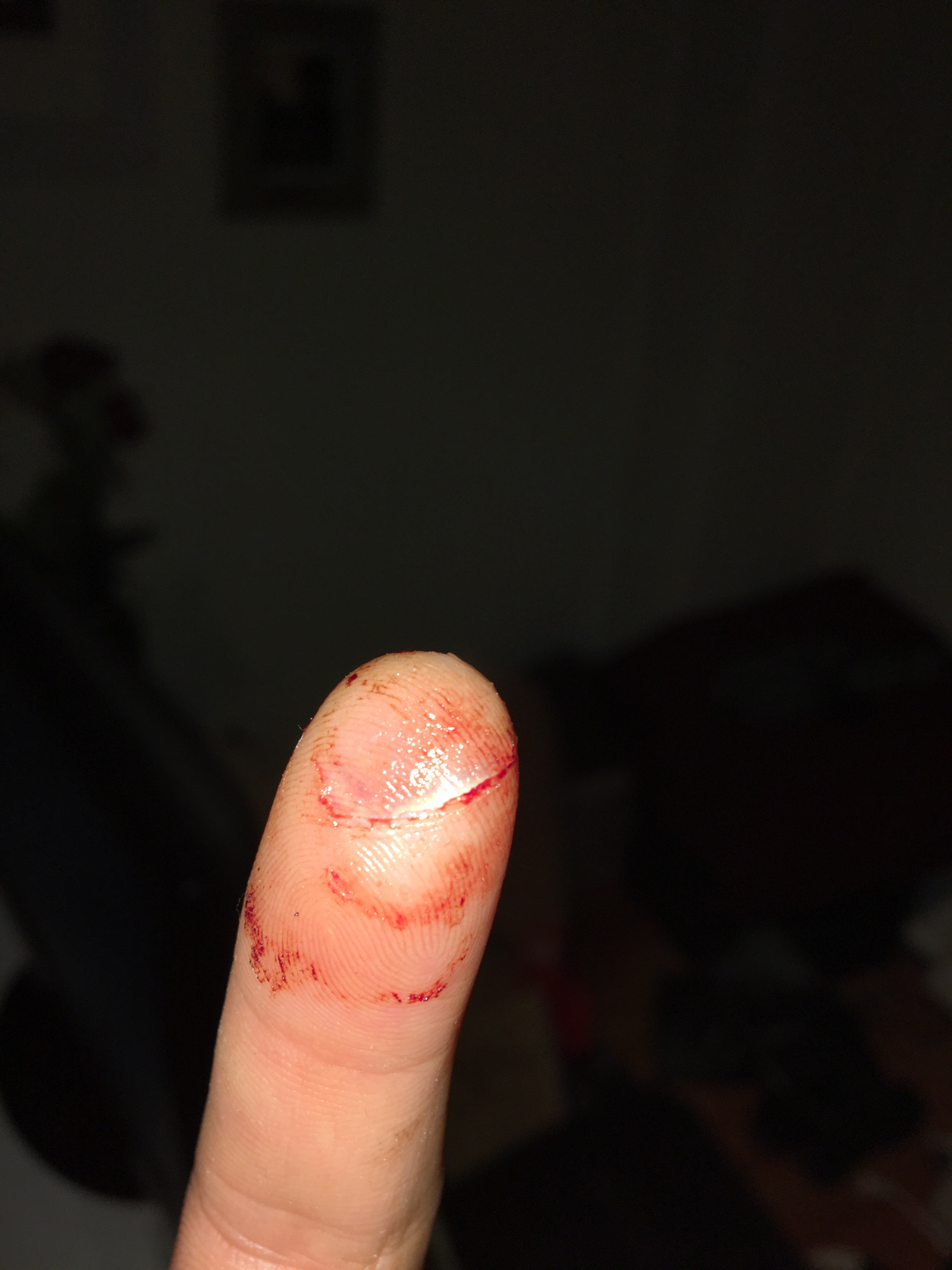 my finger The term soft tissue refers to muscles, ligaments and tendons that surround and   injuries to the soft tissue surrounding the fingers joints are usually caused by a .